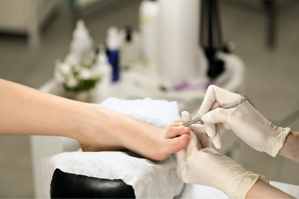 treatment of fungal toenail infection
