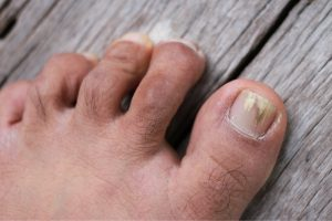treatment for fungal toenail infection