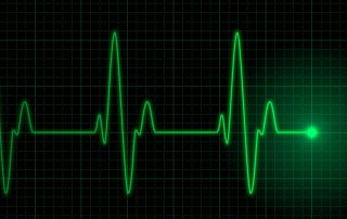are palpitations serious?